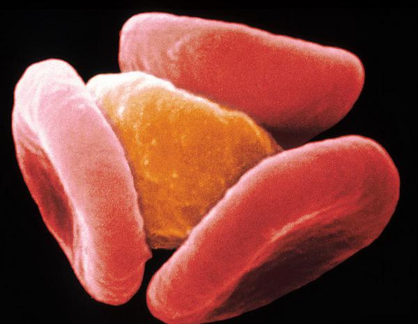 статьи о паразитах в организме человека