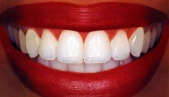 15 фактов о зубах