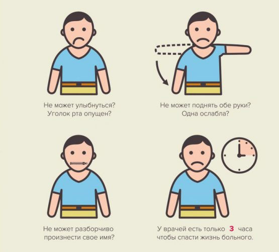 три признака инсульта