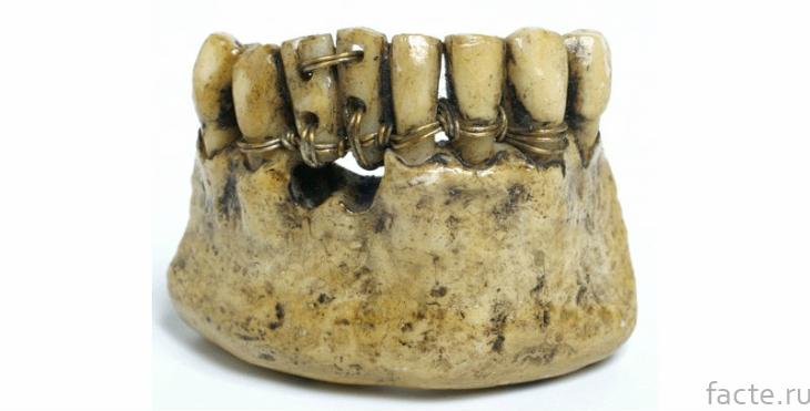Древняя стоматология