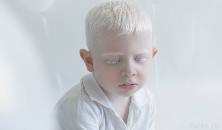 Мальчик альбинос