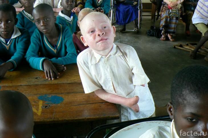 Ужас альбиносов