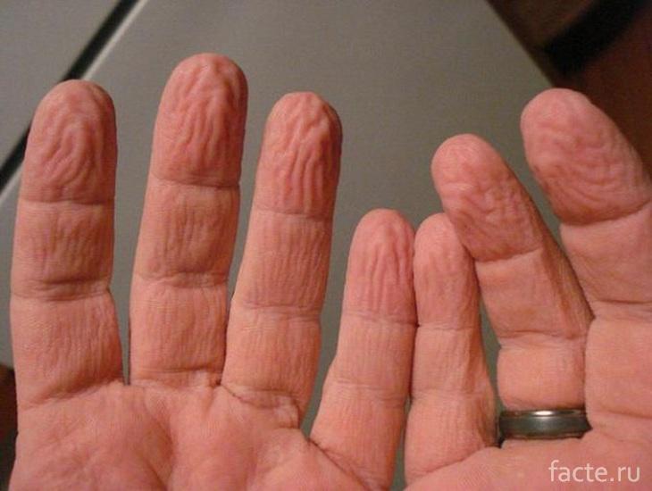 Морщинки на пальцах