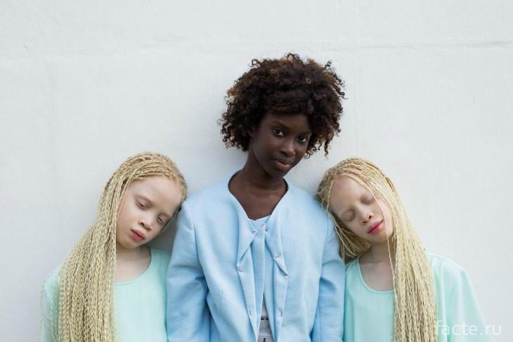 альбиносы с сестрой