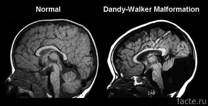 Синдром Денди-Уокера