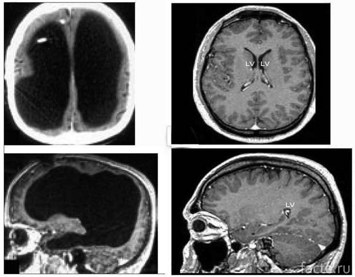 Результаты МРТ пациента и их сравнение с обычными