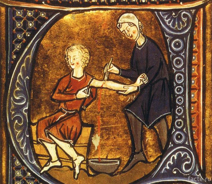 Средневековые методы лечения