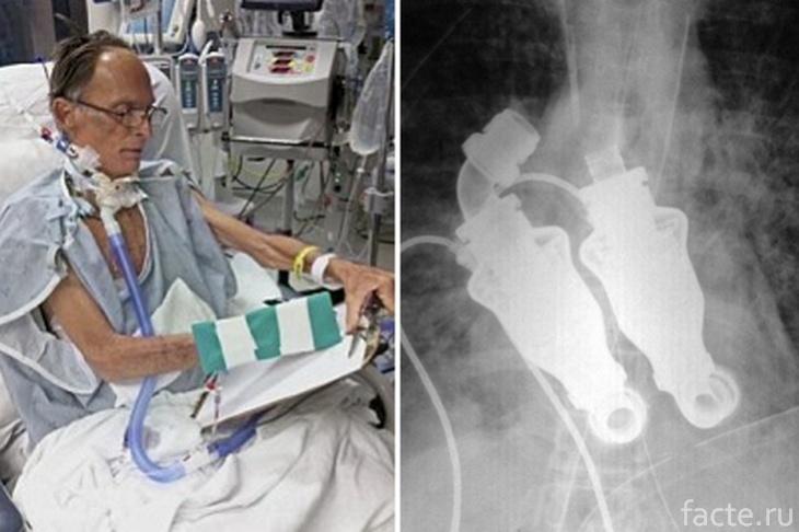 Крэйг Льюис и его имплантат сердца