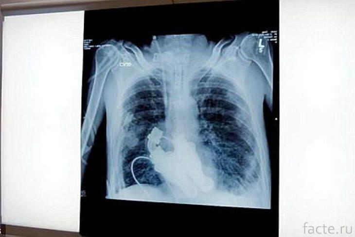 Имплантат сердца