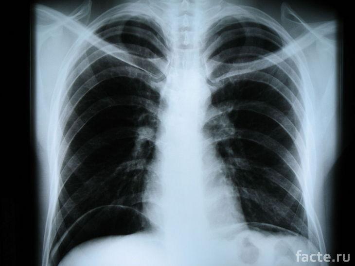 Рентгеновский снимок позвоночника
