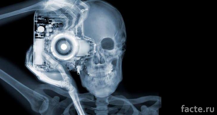 Конкурс красоты с рентгеновскими снимками