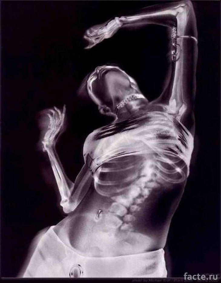 Рентгеновский снимок девушки