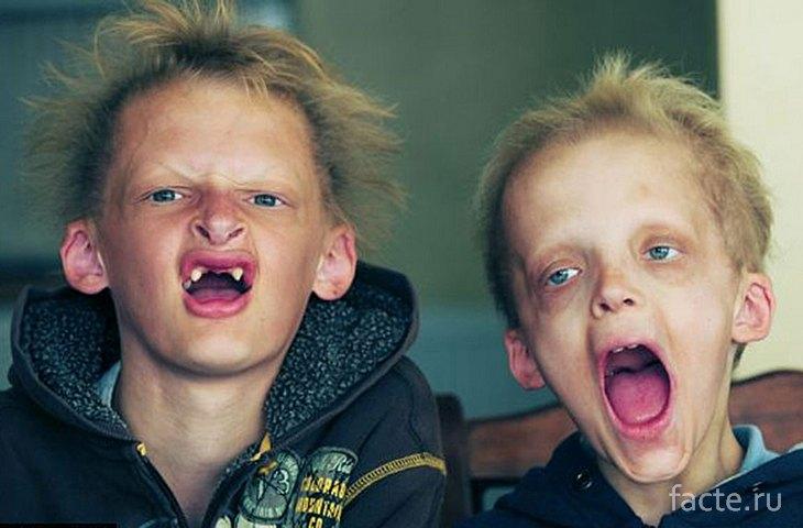 Дети с порфирией
