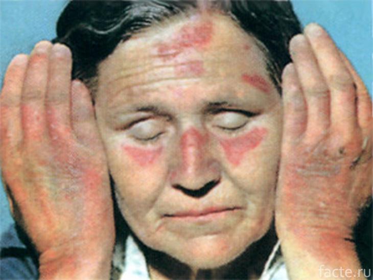 Женщина, страдающая пеллагрой