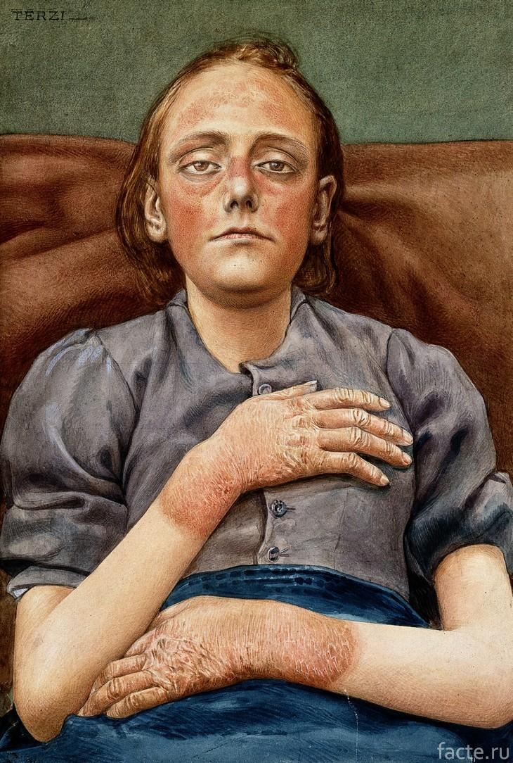 Девушка, страдающая пеллагрой