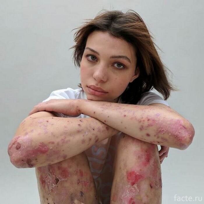 софи майен шрамы