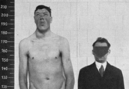 Адам Райнер — единственный в истории человек, бывший и карликом и гигантом