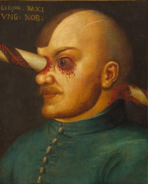 Венгерский дворянин жил с копьём в голове.