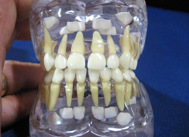 Выращивание зубов сколько стоит 71
